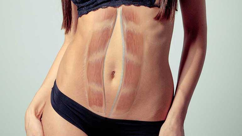 La Diastasi Addominale: molto più che un problema estetico